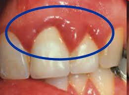 symptomen tandsteen