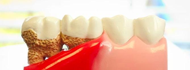 tandsteen onder tandvlees