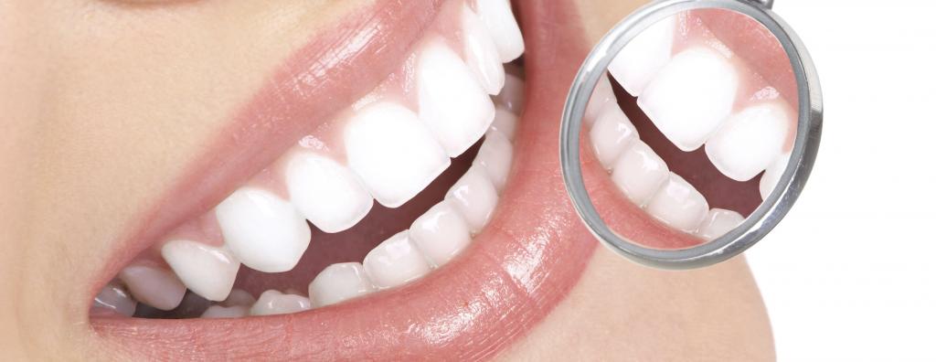 wat te doen tegen tandsteen