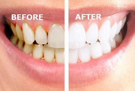 Zelf tandsteen verwijderen doe je z 10 tips tandsteen verwijderen - Graham en bruine behang ...